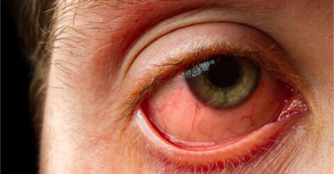 red eye - allergic conjunctivitis
